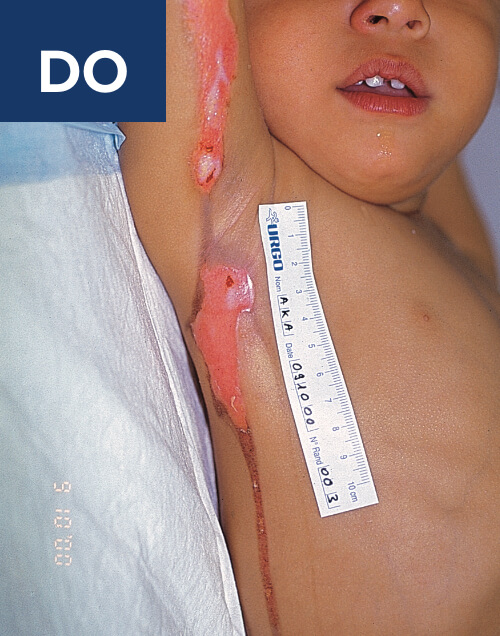 1-year-old child with wound pre-treatment.
