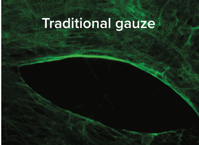 Fibrous green matrix with eye-shaped black mass with the following text overlay: Traditional gauze.